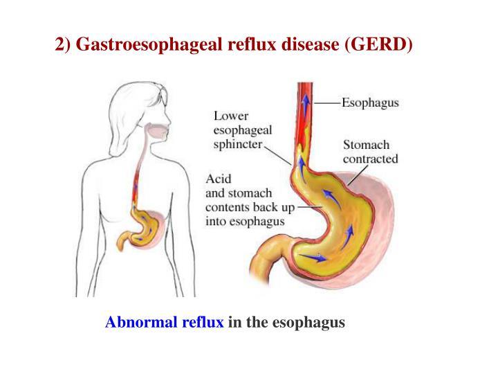 2) Gastroesophageal reflux disease (GERD)