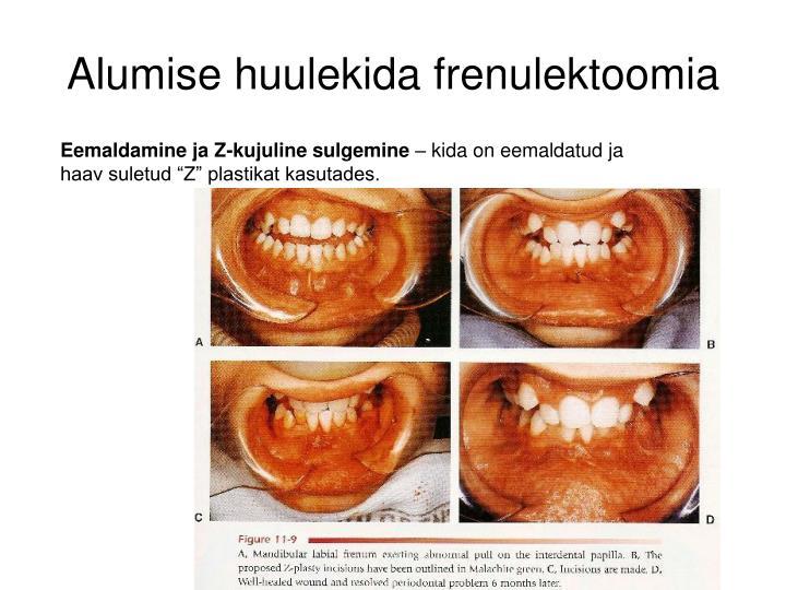 Alumise huulekida frenulektoomia