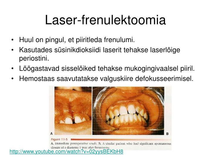 Laser-frenulektoomia