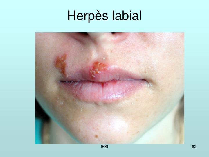Herpès labial
