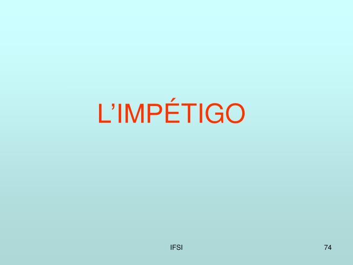L'IMP