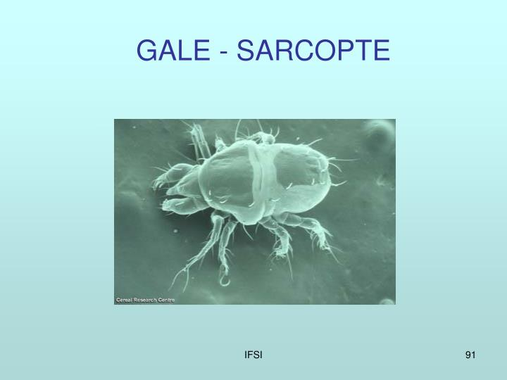 GALE - SARCOPTE