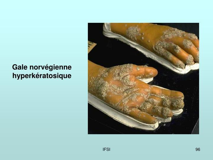 Gale norvégienne hyperkératosique