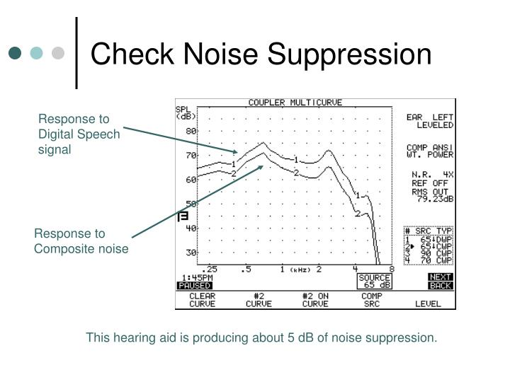 Check Noise Suppression