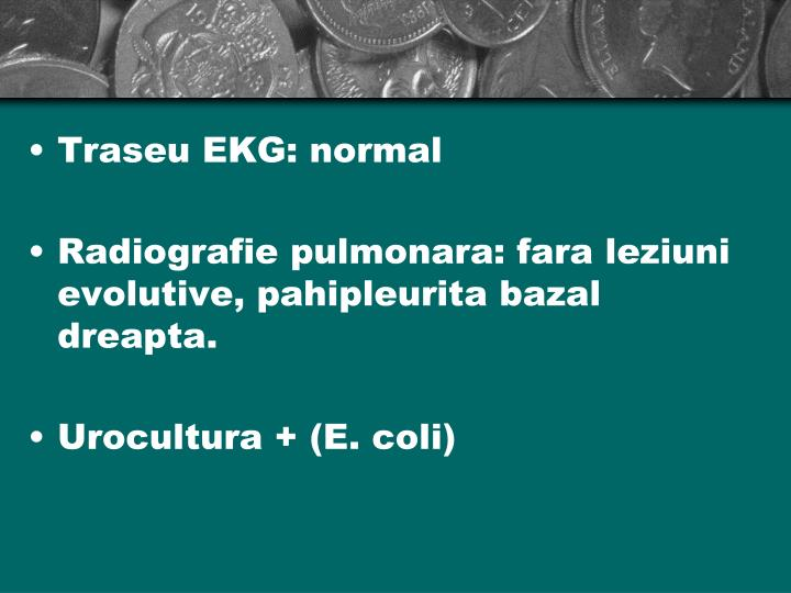 Traseu EKG: normal