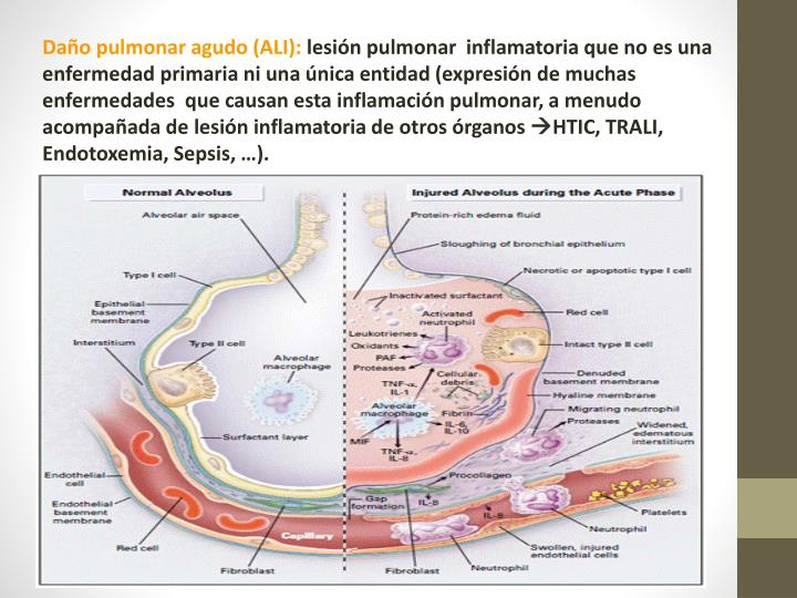 Daño pulmonar agudo (ALI):