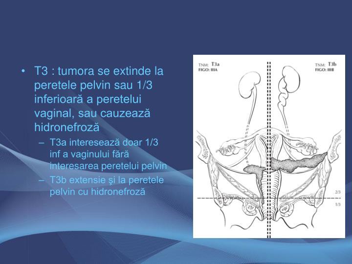T3 : tumora se extinde la peretele pelvin sau 1/3 inferioară a peretelui vaginal, sau cauzează hidronefroză