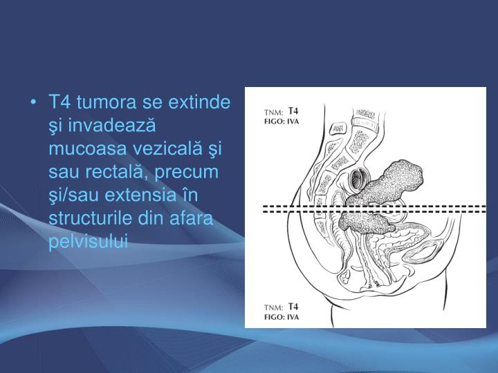 T4 tumora se extinde şi invadează mucoasa vezicală şi sau rectală, precum şi/sau extensia în structurile din afara pelvisului