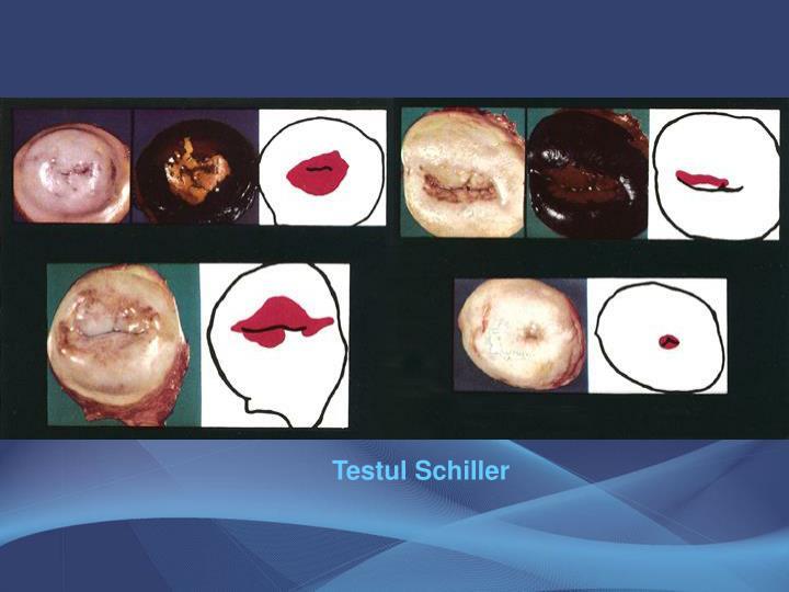 Testul Schiller
