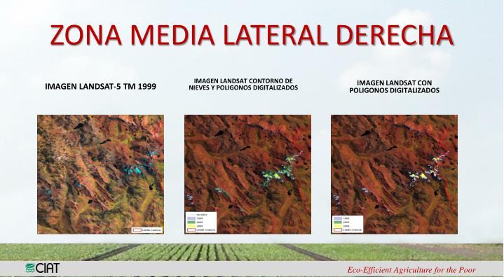 ZONA MEDIA LATERAL DERECHA