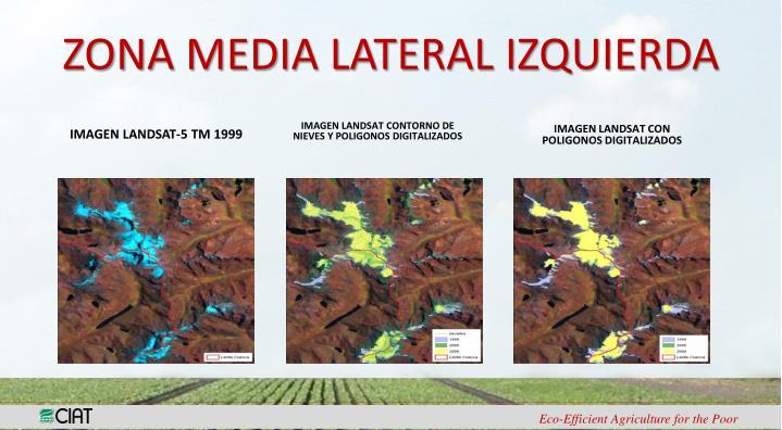 ZONA MEDIA LATERAL IZQUIERDA