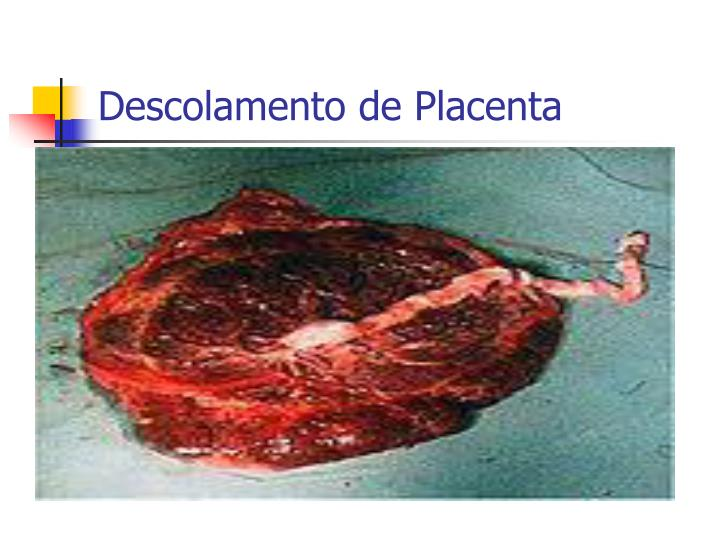 Descolamento de Placenta