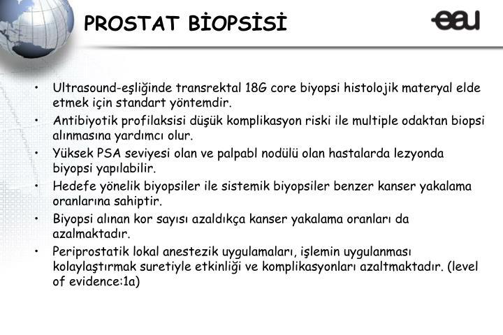 PROSTAT BİOPSİSİ