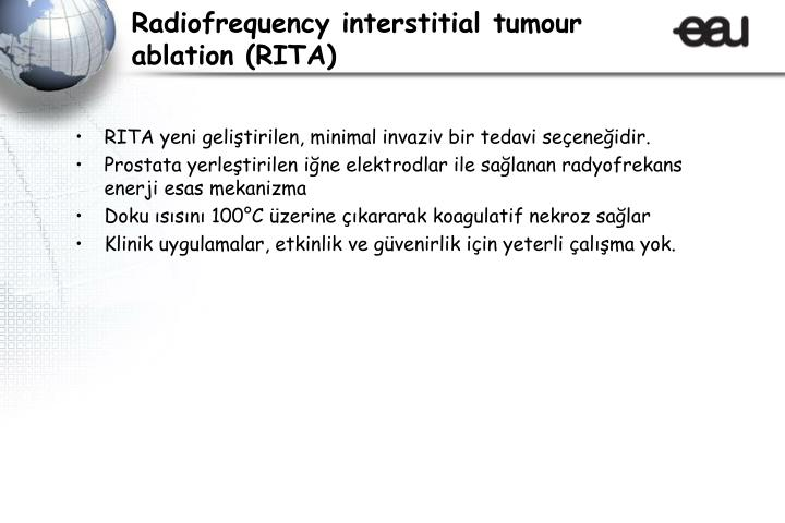 Radiofrequency interstitial tumour