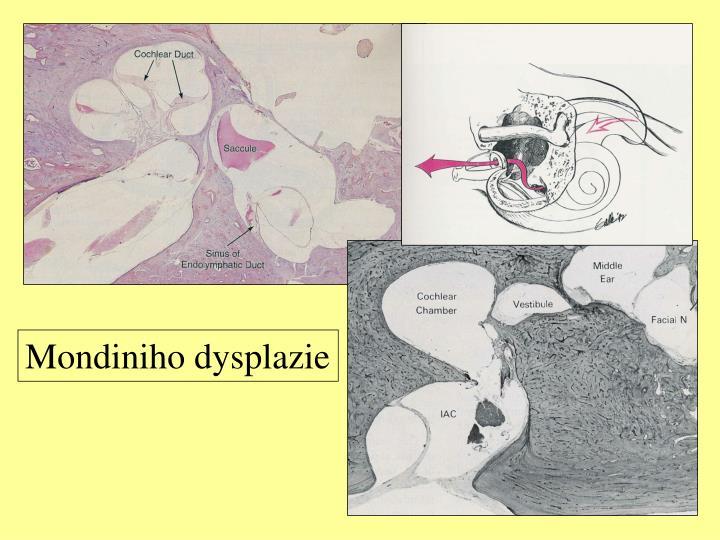 Mondiniho dysplazie
