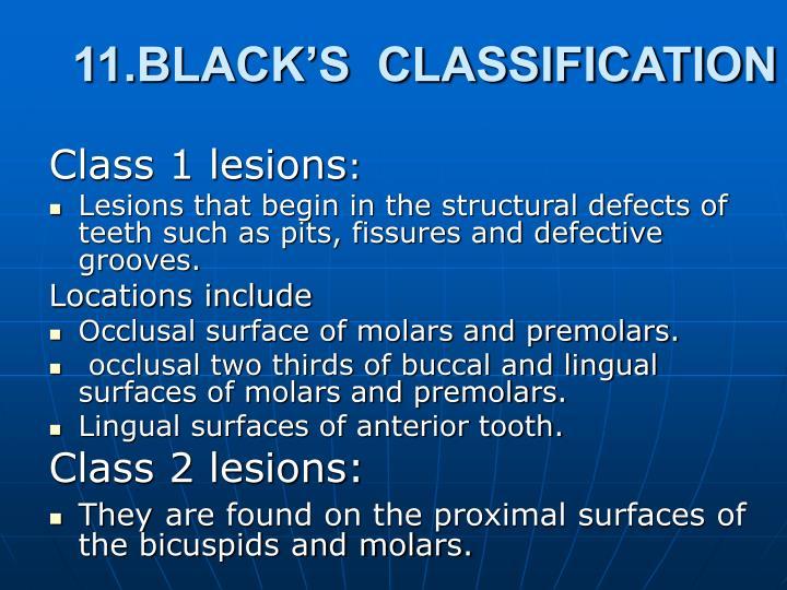 11.BLACK'S  CLASSIFICATION