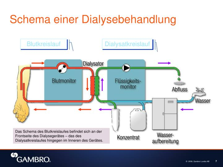Schema einer Dialysebehandlung