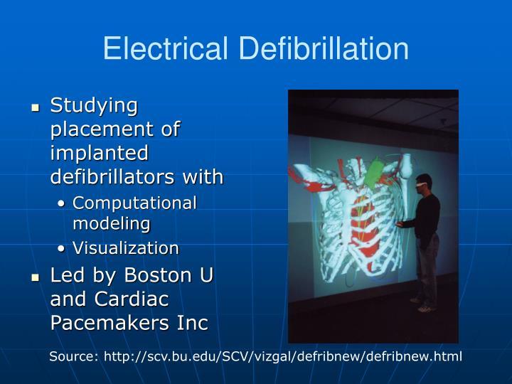 Electrical Defibrillation