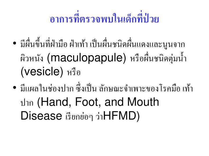 อาการที่ตรวจพบในเด็กที่ป่วย