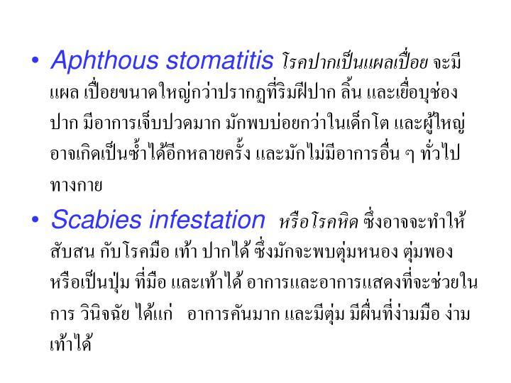 Aphthous stomatitis