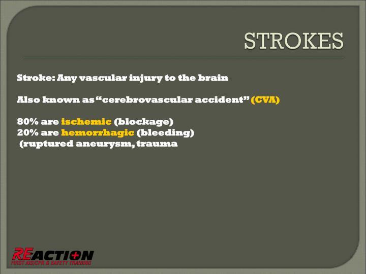 Stroke: Any vascular injury to the brain