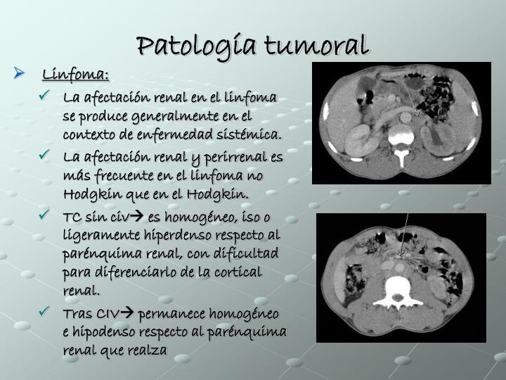 Patología tumoral