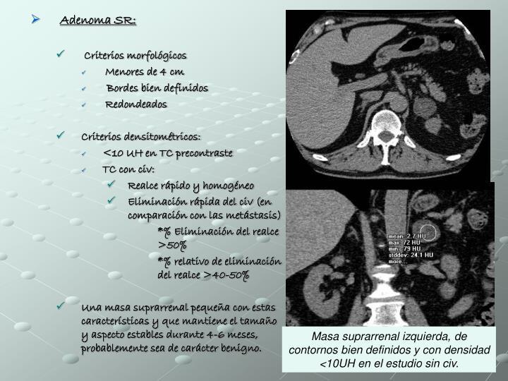 Adenoma SR: