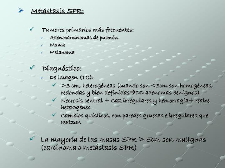 Metástasis SPR: