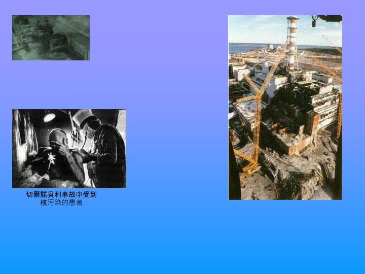 切爾諾貝利事故中受到核污染的患者