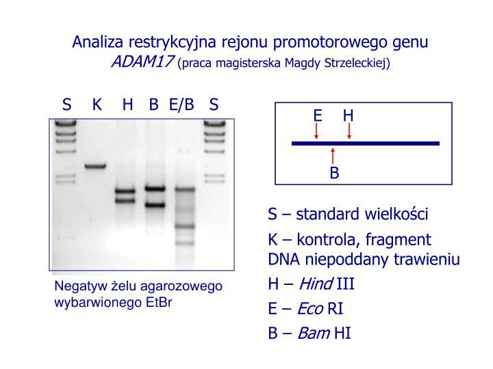 Analiza restrykcyjna rejonu promotorowego genu