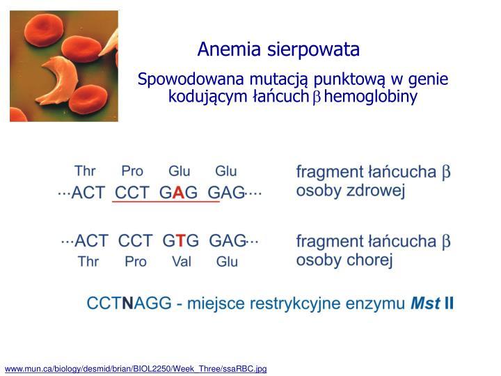 Anemia sierpowata