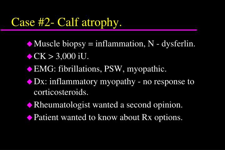 Case #2- Calf atrophy.