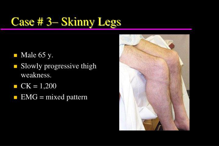 Case # 3– Skinny Legs
