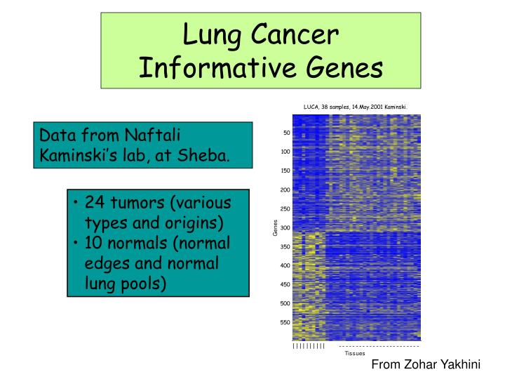 Lung Cancer Informative Genes
