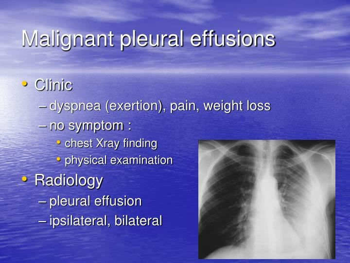 Malignant pleural effusions