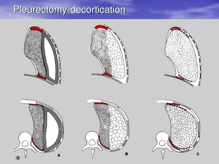 Pleurectomy-decortication