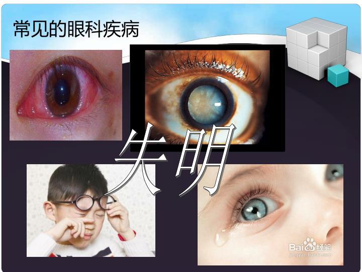 常见的眼科疾病