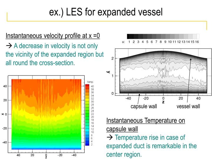 ex.) LES for expanded vessel