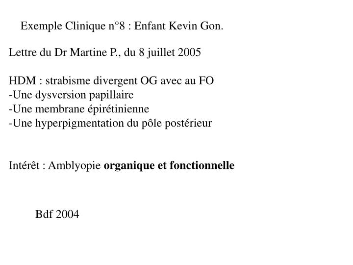 Exemple Clinique n°8 : Enfant Kevin Gon.