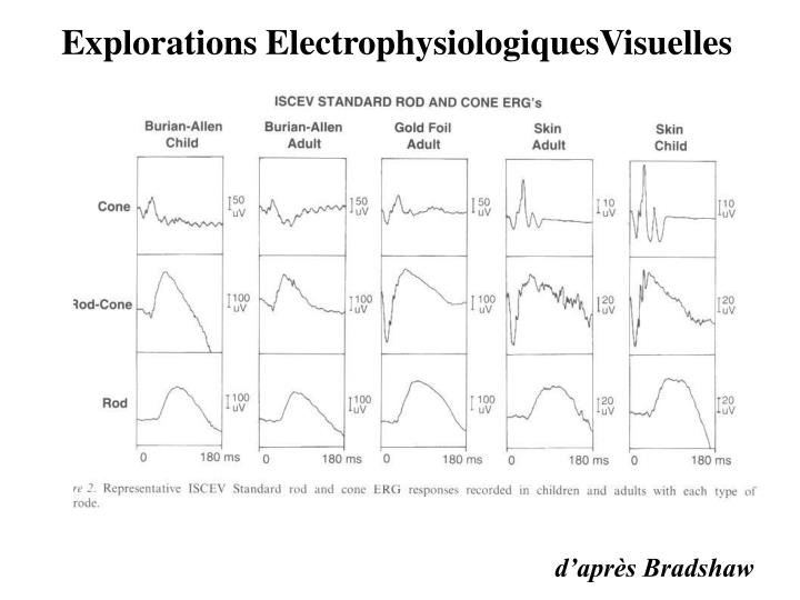 Explorations ElectrophysiologiquesVisuelles