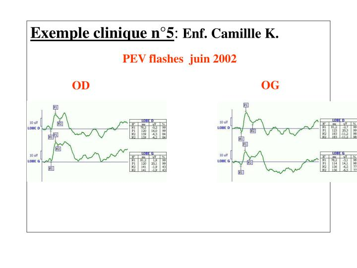 Exemple clinique n°5