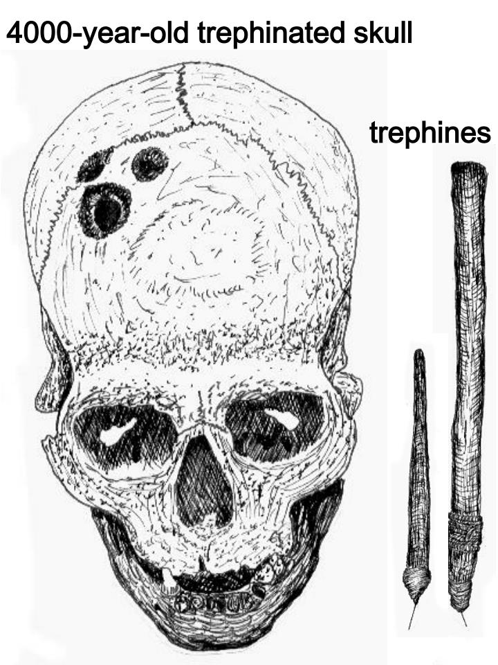 4000-year-old trephinated skull