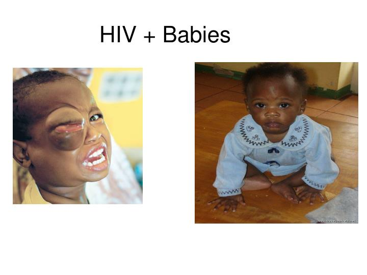 HIV + Babies