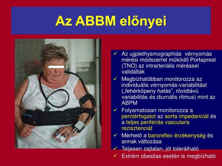 Az ABBM elnyei