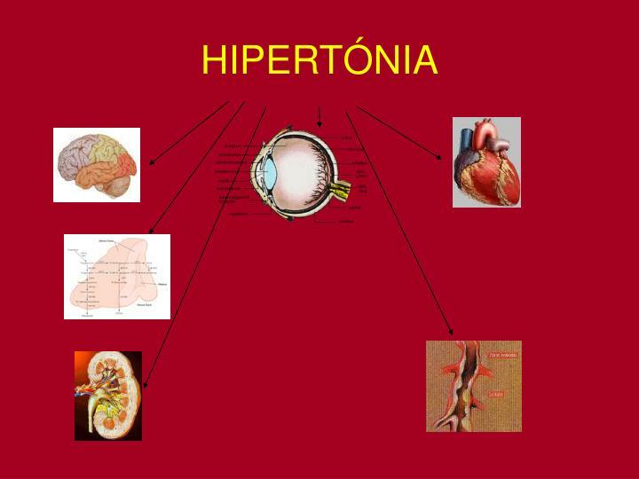 HIPERTNIA
