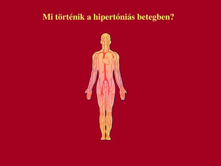 Mi trtnik a hipertnis betegben?