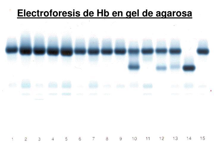 Electroforesis de Hb en gel de agarosa
