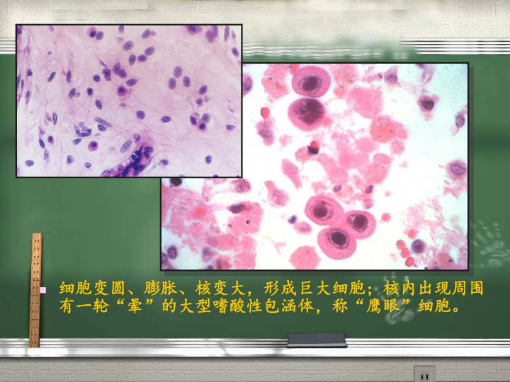 细胞变圆、膨胀、核变大,形成巨大细胞;核内出现周围有一轮