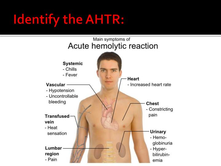 Identify the AHTR: