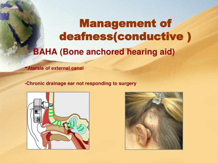 Management of deafness(conductive )
